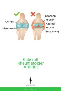 Rheumatoide Arthritis Gelenk Ansicht