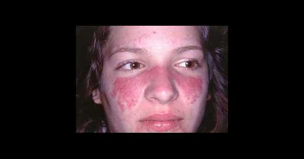 systemische lupus erythematodes