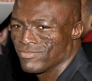 Lupus Lebenserwartung - Sänger Seal mit Narben im Gesicht