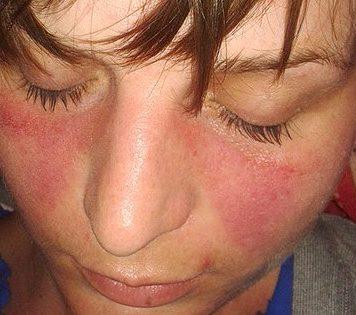 Lupus Symptome - Schmetterlingserythem
