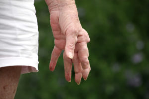 Rheumatoide Arthritis Hände verformt