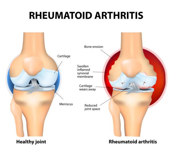 Rheumatoide Arthritis Gelenk Innenansicht