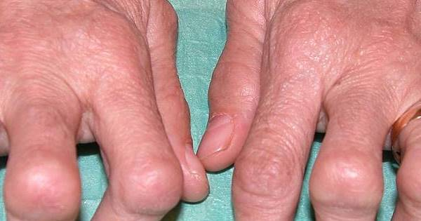 Rheumatoide Arthritis Prognose- Gelenke
