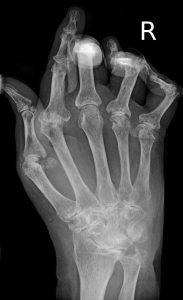 Rheumatoide Arthritis Röntgen Hand