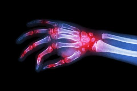 Was ist rheumatoide Arthritis? Röntgen Hand geschwollen