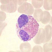 Granulozyt – Autoimmunerkrankungen