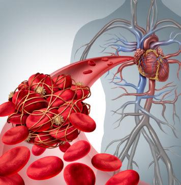 Antiphospholipid-Syndrom - Thrombose in der Blutbahn