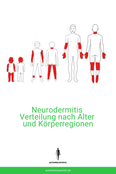 Neurodermitis betroffene Körperstellen nach Alter