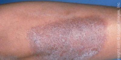Neurodermitis am Bein