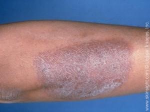 Was ist Neurodermitis? Neurodermitis am Bein