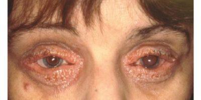 Neurodermitis an den Augen (c)Seitz 2017