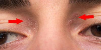 Neurodermitis an den Augen