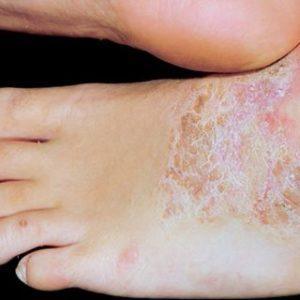 Neurodermitis an den Füßen (c) Habif 2004