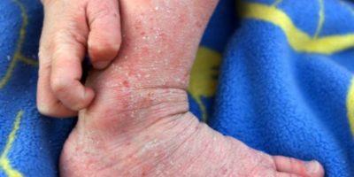 Neurodermitis an den Füßen (c)krankheiten-portal.de