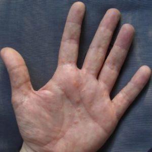Neurodermitis an den Händen, Dishydrosis
