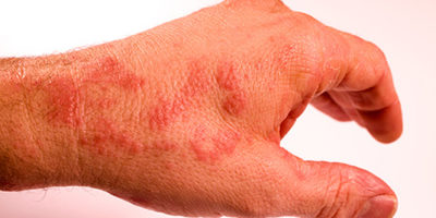 Neurodermitis an den Händen (c)bkk24