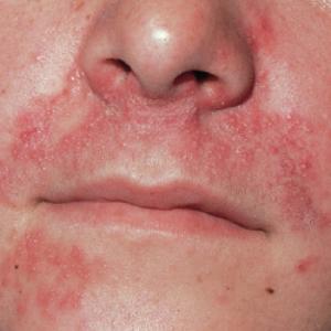 Neurodermitis im Gesicht (c)allergiefreie-allergiker