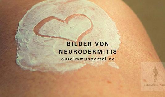 Neurodermitis Bilder