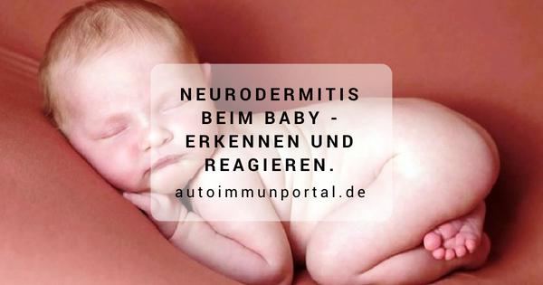 Neurodermitis beim Baby erkennen und reagieren