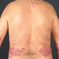 Chronisch stationsäre Plaque-Psoriasis, (c)enzyklopaedie-dermatologie.de