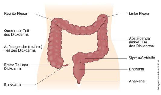 Dickdarm Aufbau colitis ulcerosa - (c)Deximed