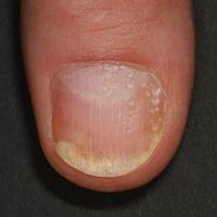 Eingedellter Nagel bei Schuppenflechte (c)enzyklopaedie-dermatologie.de