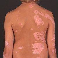 Mosaikdermatose mit Psoriasis Plaques (c)enzyklopaedie-dermatologie.de
