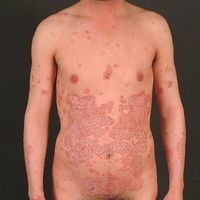 Psoriasis Plaque (c)enzyklopaedie-dermatologie.de