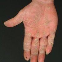 Psoriasis an der Hand (c)enzyklopaedie-dermatologie.de