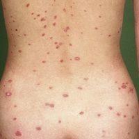 Psoriasis guttata (c)enzyklopaedie-dermatologie.de