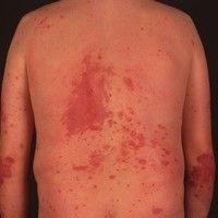 Schuppenflechte Plaque Typ (c)enzyklopaedie-dermatologie.de
