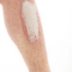Schuppenflechte, Psoriasis, Bein