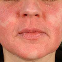 Schuppenflechte im Gesicht (c)enzyklopaedie-dermatologie.de