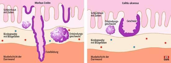 Morbus Crohn Colitis Vergleich, Quelle: Pharmazeitische Zeitung, Index 37429