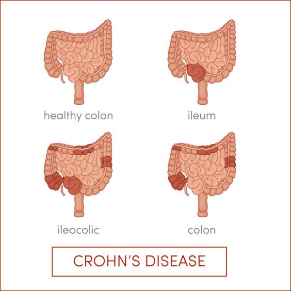Morbus Crohn Formen