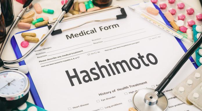 Was bedeutet Hashimoto?