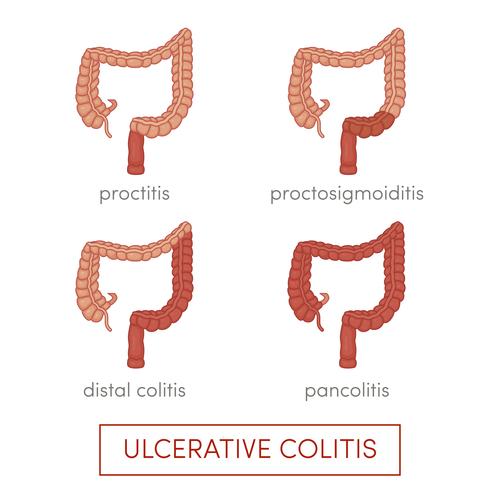 Colitis Ulcerosa Formen