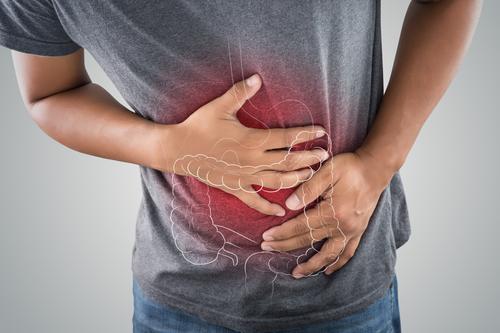 Colitis Ulcerosa Symptome