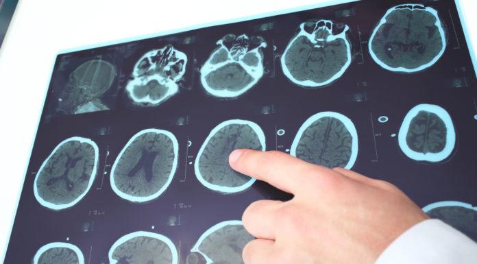 Multiple Sklerose, Darm