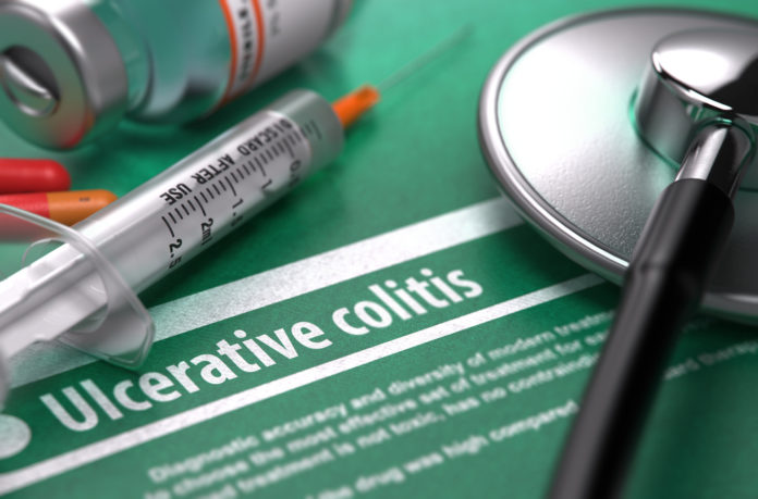 Was ist Colitis ulcerosa