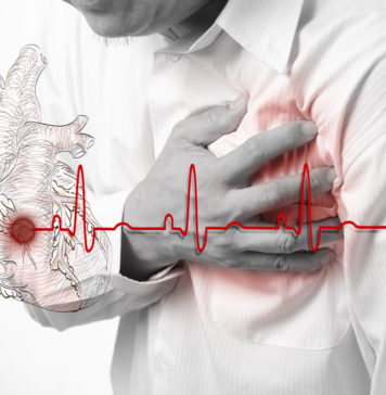 Herzinfarkt, Autoimmunerkrankungen