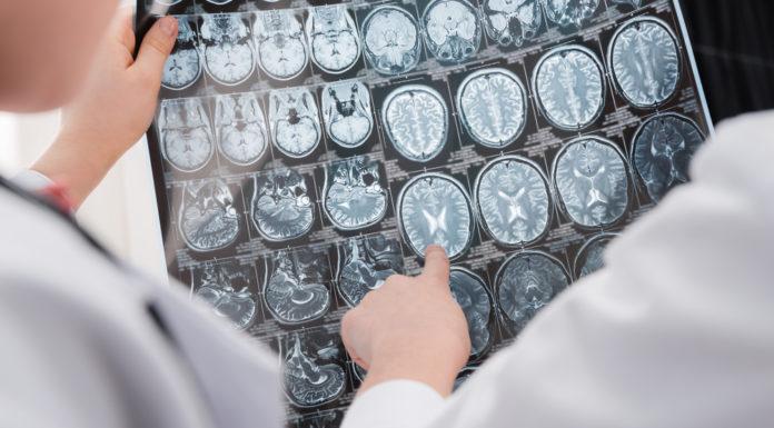 Mikrobiom, Gehirn