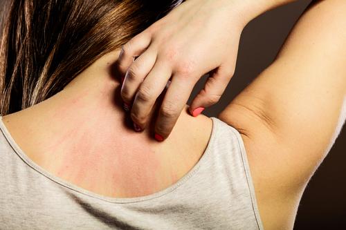 Manuka-Honig-und-seine-unterschiedlichen-Anwendungsbereiche-auf-der-Haut