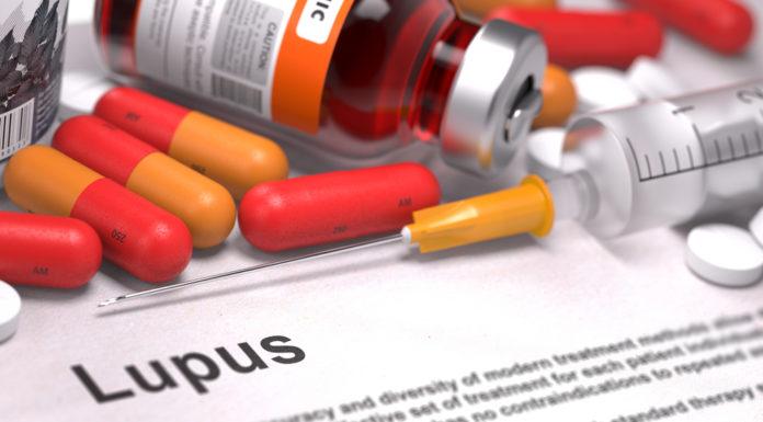 Lupus, Ernährung