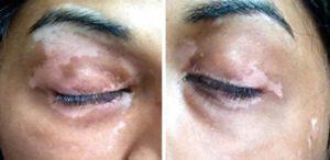 Khandalavala Vitiligo Repigmentierung2