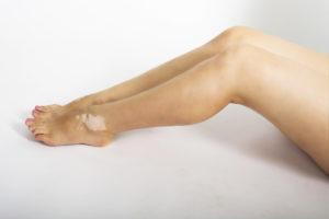 Bein Vitiligo