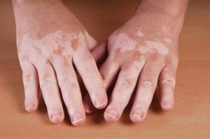 Vitiligo Hände