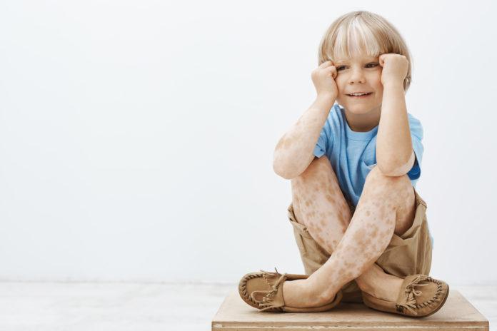 Vitiligo Kind Symptome weiße Flecken
