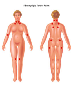 Fibromyalgie Tender Points