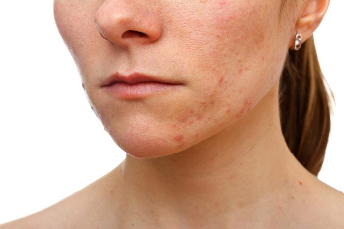 Junges Mädchen mit Hautproblemen und Vitamin C Mangel